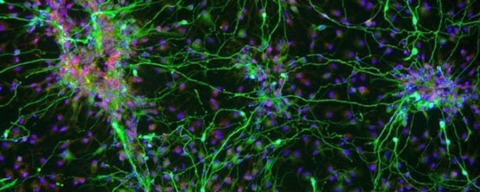 How Stem Cells May Help with Parkinson's Disease