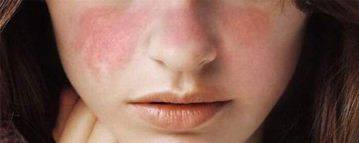 Lupus – What are the Signs and Symptoms