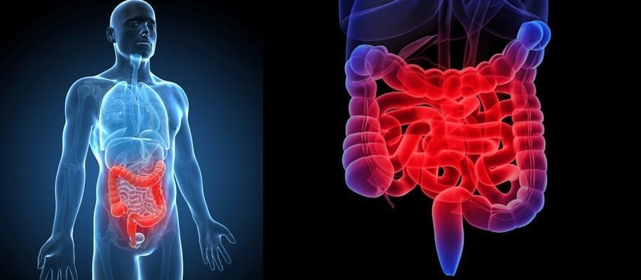 Intravenous Stem Cells in the Treatment of Inflammatory Bowel Disease