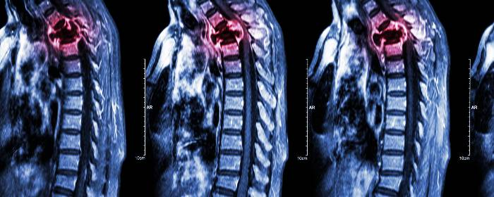 Autologous mesenchymal stromal cell transplantation for spinal cord injury