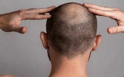 Same Day Stem Cell Treatment for Pattern Baldness