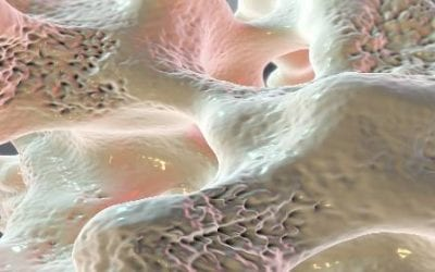 Stem Cells from Elderly Patients Can Form New Bone