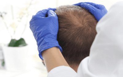 How Does Stem Cell Hair Restoration Work?