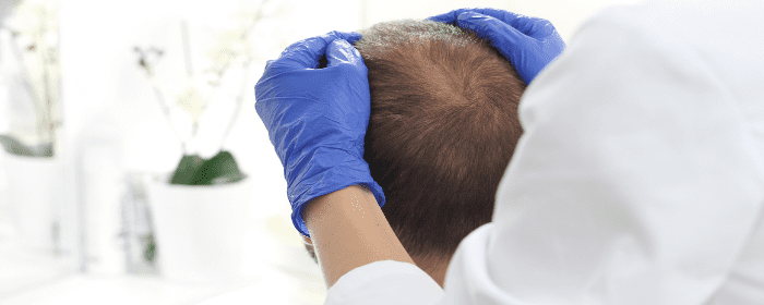 How Does Stem Cell Hair Restoration Work