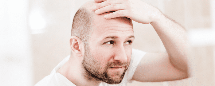 Stem Cell Therapy for Hair Loss: New Developments