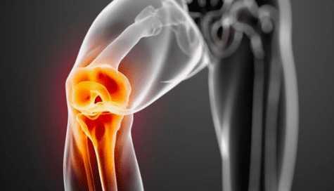 Stem Cell Treatments Vs Joint Surgery?