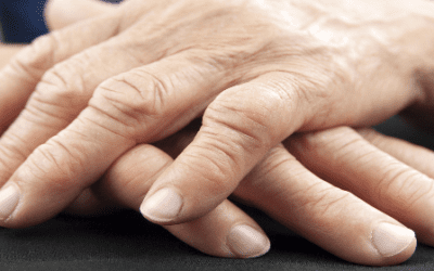Clinical Trial Shows Mesenchymal Stem Cells Safe and Effective for Rheumatoid Arthritis