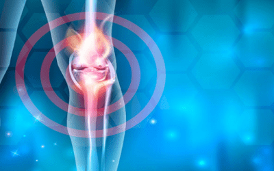 Exosomes from Mesenchymal Stem Cells Show to Protect Cartilage and Relieve Osteoarthritis Pain